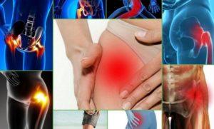 Боли в обеих тазобедренных суставах и ниже