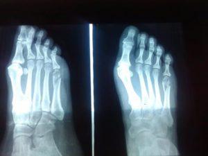 Перелом пятой плюсневой кости левой ноги у ребенка