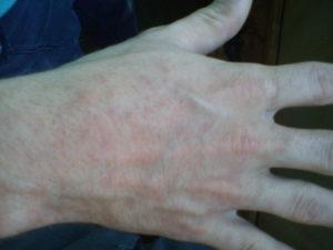 Красные пятна на кистях и руке