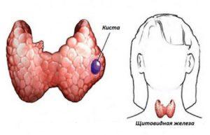 Кисты и аденома щитовидной железы