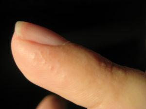 Маленькие пузырьки на пальцах рук