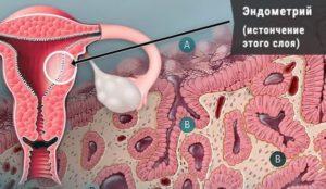 Планирование беременности и тонкий эндометрий
