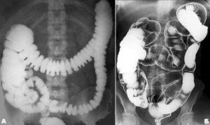 Ирригоскопия и полипы кишечника