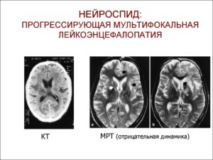 Лейкоэнцефалопатия