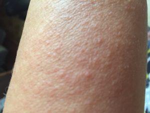 Мелкая сыпь в виде пузырьков по всему телу