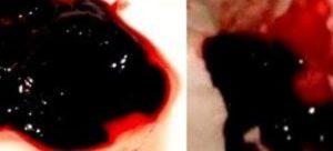 Кровь со сгустками через 3 недели после кесарева