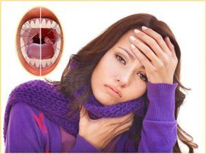 Планирование беременности и ангина