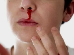 Кровь из носа через рот