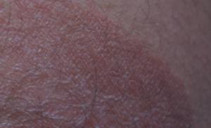 Изменение цвета кожи полового члена и паха