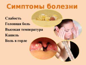 Боли в горле, температура