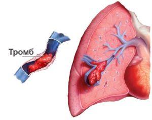 Как растворить тромб в сердце