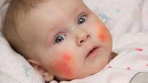 Краснеет лицо при приеме пищи у грудничка. Аллергия