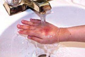 Испытываю пощипывание при контакте с водой