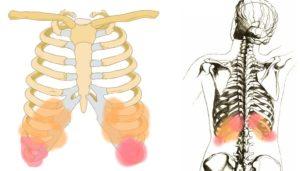 Болит 11 ребро при нажатии