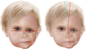 Кривошея, ассиметрия лица