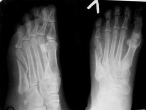 Перелом основания 3-4 плюсневой кости