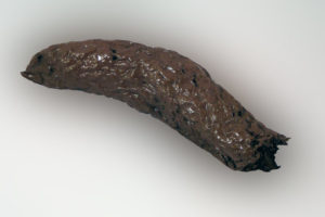 Кал черного цвета