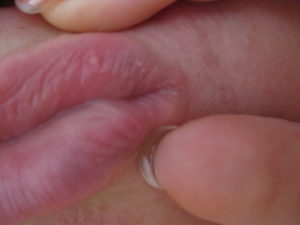 Красное образования на больших половых губах