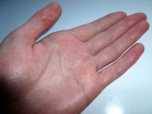 Болит кожа на ладонях рук