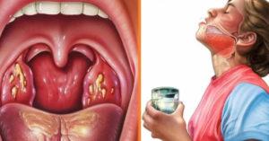 Как лечить гипотериоз, и может ли болеть горло?