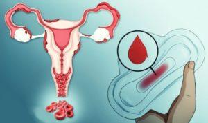 Кровь из половых путей