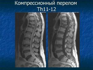 Компрессионный перелом Th 11
