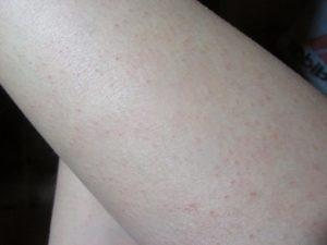 Красные точки на ногах и бедрах