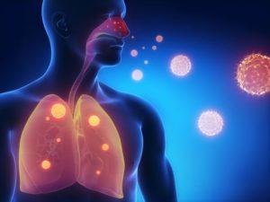 Иммунитет, пневмония