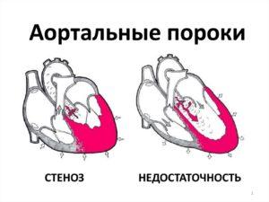 Комбинированный порок аортального клапана