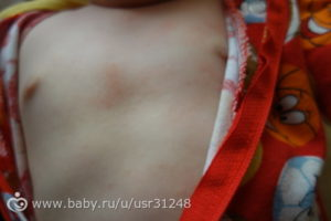 Красные пятна на груди у ребенка