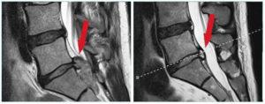 Левосторонняя заднебоковая грыжа межпозвоночного диска L5 - S1