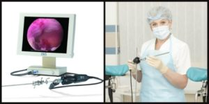 Лапароскопия + гистерорезектоскопия на 11 день цикла