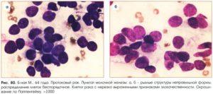 Мазок-отпечаток отделяемого из молочной железы