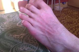 Красные пятна на подъеме ноги