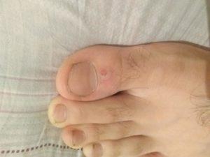 Болячки на пальцах ног