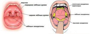 Болит горло, уши, образования на небных дужках