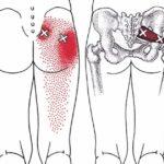 Лечение гемолитического стафилококка