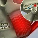 Болят зубы, может ли поменяться самостоятельно прикус