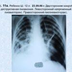 Боли в спине и грудной клетке