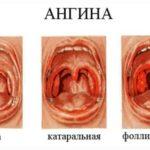 Лечение двухкамерной кисты яичника