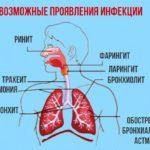 Как смазывать горло раствором колларгола