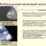 Лучше крем с азелаиновой кислотой 15 или 20%