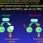 Лечение мигрени гомеопатия