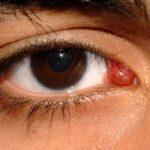 Кровавое пятно на нижнем белье причины