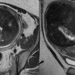 Как снять диагноз саркоидоз