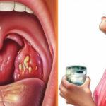 Как правильно снизить дозу метформина