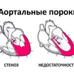 Боль в области клитора