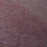 Красное пятно у ребёнка 3ех лет на спине