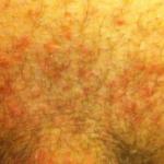Болезненный синеватый шарик возле ануса